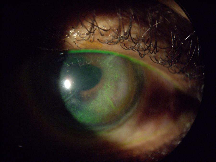Corneal Hydrops developed corneal hyrops